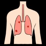 ウイルスに脅かされる肺
